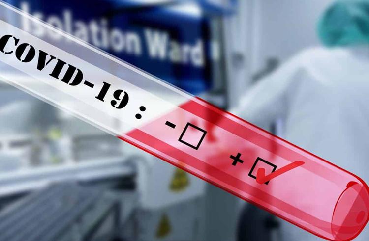 थप ३३४ जनामा कोरोना पुष्टि, संक्रमितको संख्या २६३४ सय पुग्यो